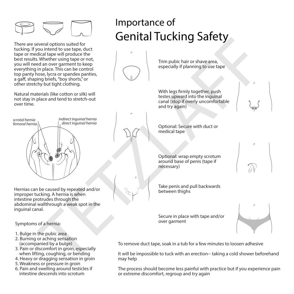 Educational illustrated pamphlet on importance of genital tucking safety